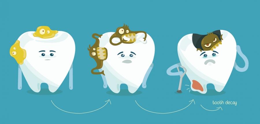 Шүд цоорох өвчнөөс хэрхэн сэргийлэх вэ