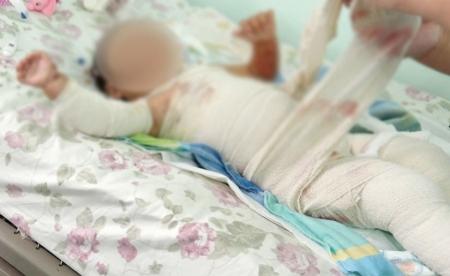 Тав хүртэлх насны 2525 хүүхэд түлэгдэж нас баржээ