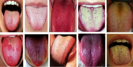 Амнаас эвгүй үнэр гарах шалтгааны 95 хувь нь хэлний өнгөртэй холбоотой