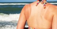 Наранд борлож, түлэгдсэн арьсыг хэрхэн цайруулах вэ